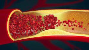 AstraZeneca, cause de thrombose et d'embolie